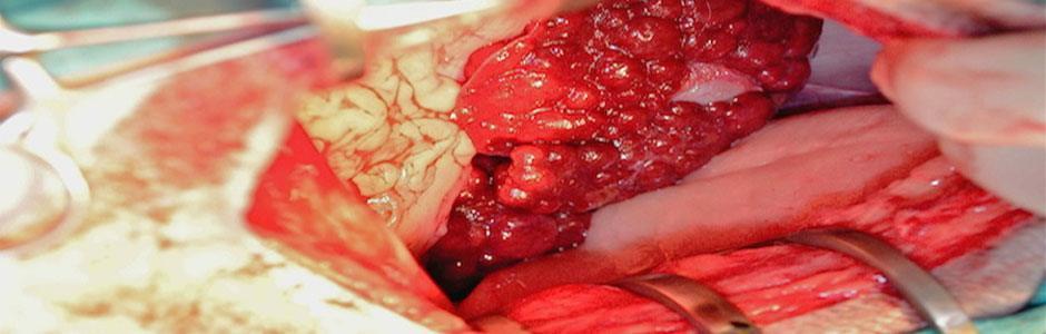 CIRROSIS. Fibrosis e hiperplasia nodular