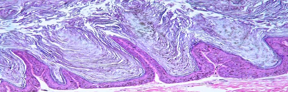Placa vírica pigmentada